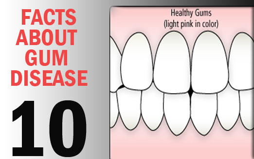 10 Facts About Gum Disease from South Charlotte Dentist