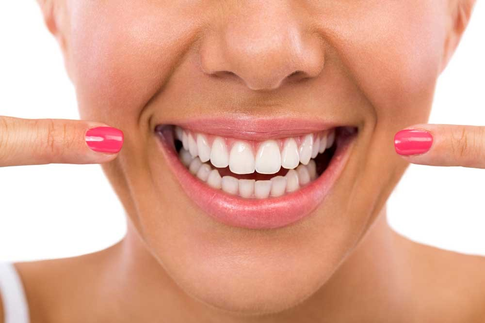 Teeth Whitening, Clean Teeth, Pretty Smile, Spring Cleaning, Healthy Teeth
